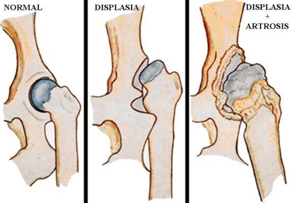 displasia cadera perros